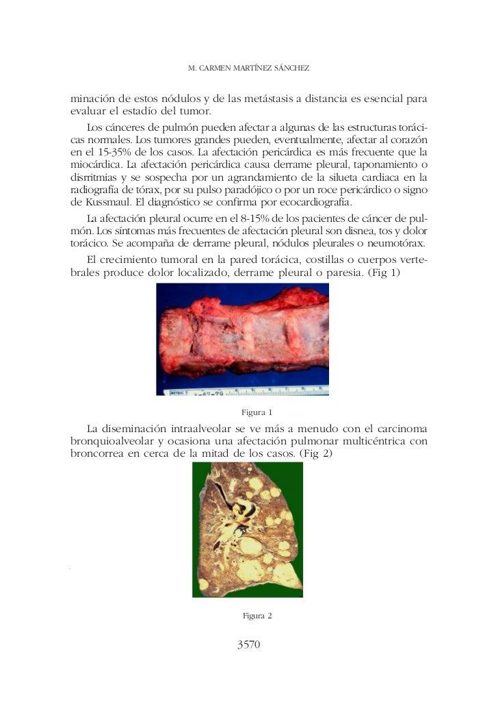M. CARMEN MARTÍNEZ SÁNCHEZminación de estos nódulos y de las metástasis a distancia es esencial paraevaluar el estadío del...