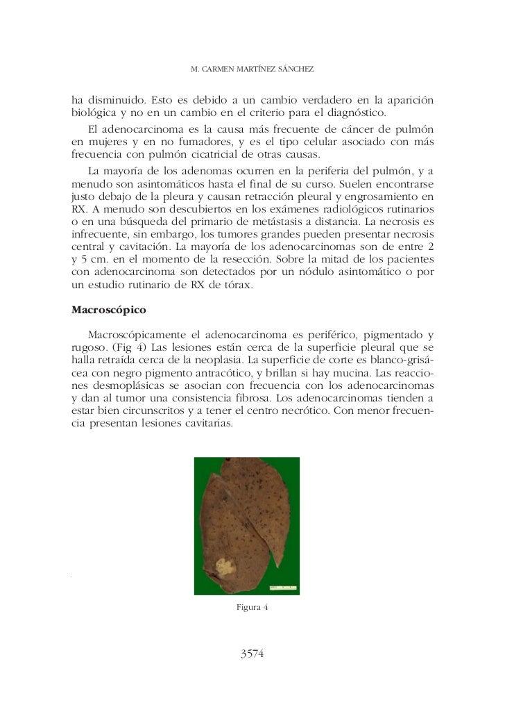 M. CARMEN MARTÍNEZ SÁNCHEZha disminuido. Esto es debido a un cambio verdadero en la apariciónbiológica y no en un cambio e...