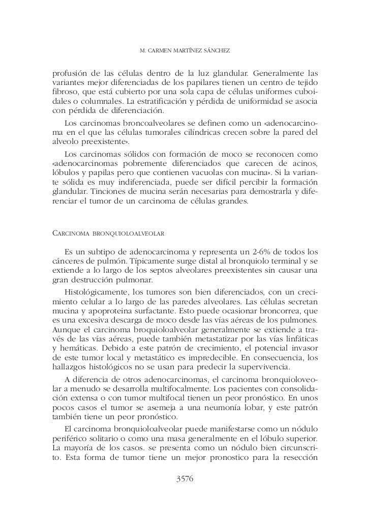 M. CARMEN MARTÍNEZ SÁNCHEZprofusión de las células dentro de la luz glandular. Generalmente lasvariantes mejor diferenciad...