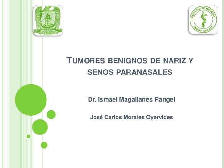 TUMORES BENIGNOS DE NARIZ Y     SENOS PARANASALES       Dr. Ismael Magallanes Rangel       José Carlos Morales Oyervides