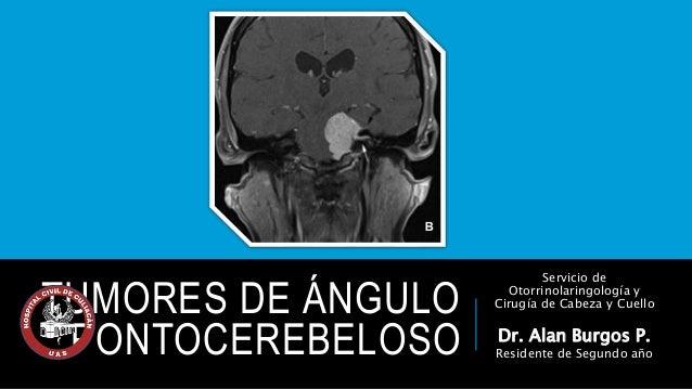 TUMORES DE ÁNGULO  PONTOCEREBELOSO  Servicio de  Otorrinolaringología y  Cirugía de Cabeza y Cuello  Dr. Alan Burgos P.  R...