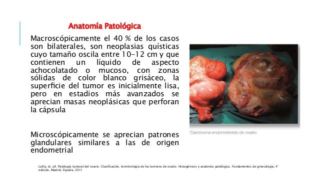 Tumores de ovario
