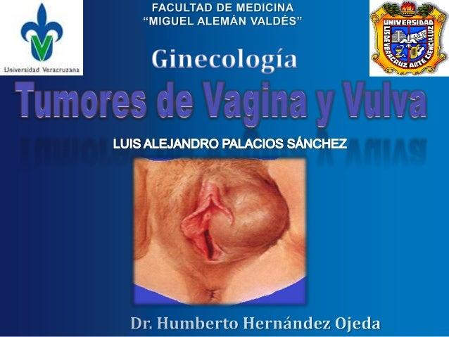 El término tumores benignos de la vulva abarca un conjunto heterogéneo detumefacciones cuyo estudio lleva a reconocer cuat...