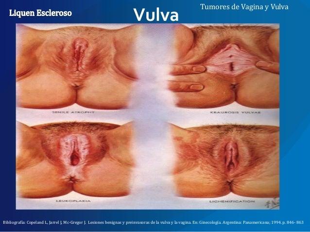 Pictures of dermatitis of the vulva