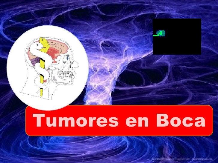 Tumores en Boca