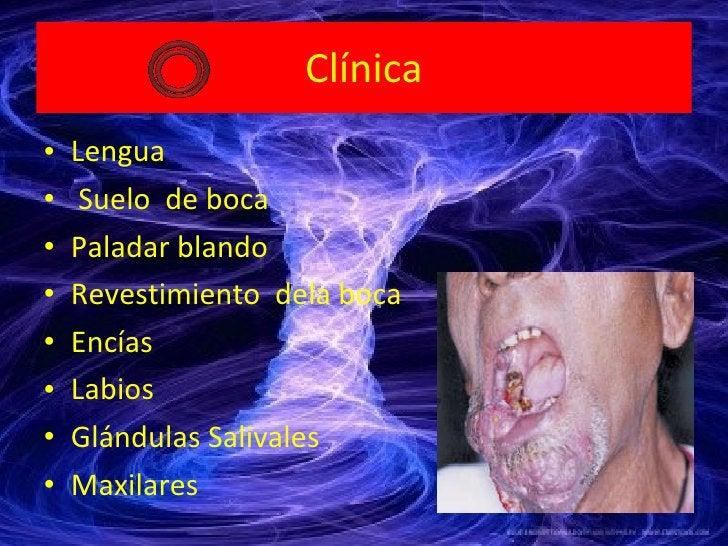 Clínica <ul><li>Lengua </li></ul><ul><li>Suelo  de boca </li></ul><ul><li>Paladar blando  </li></ul><ul><li>Revestimiento ...