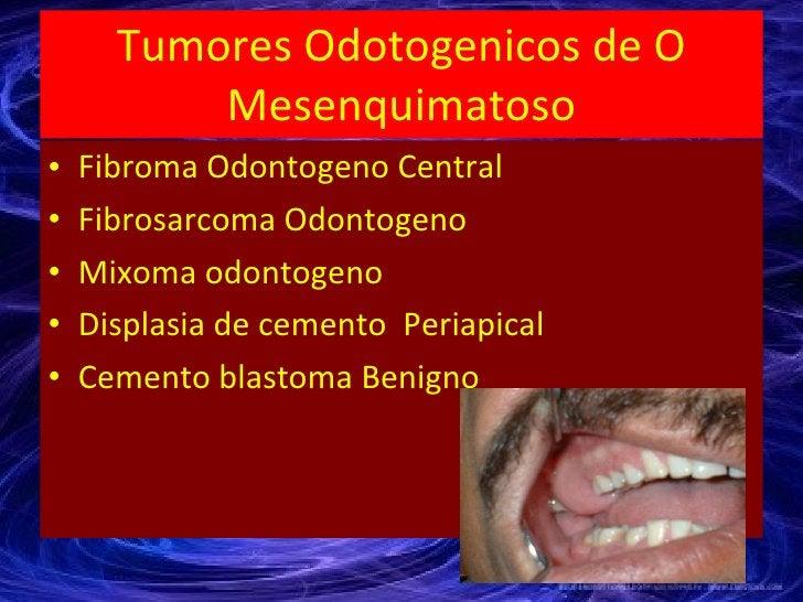 Tumores Odotogenicos de O Mesenquimatoso <ul><li>Fibroma Odontogeno Central </li></ul><ul><li>Fibrosarcoma Odontogeno </li...