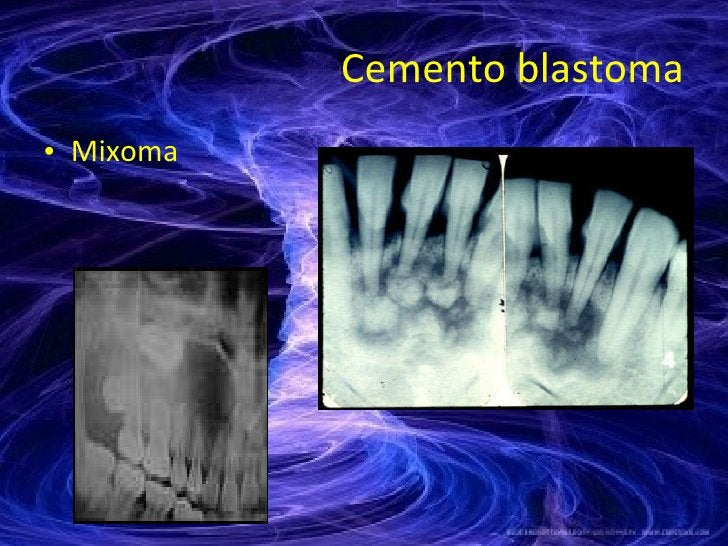 Cemento blastoma <ul><li>Mixoma </li></ul>