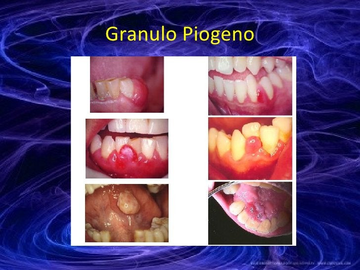 Granulo Piogeno