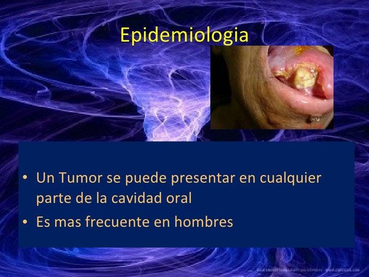 Epidemiologia <ul><li>Un Tumor se puede presentar en cualquier parte de la cavidad oral  </li></ul><ul><li>Es mas frecuent...