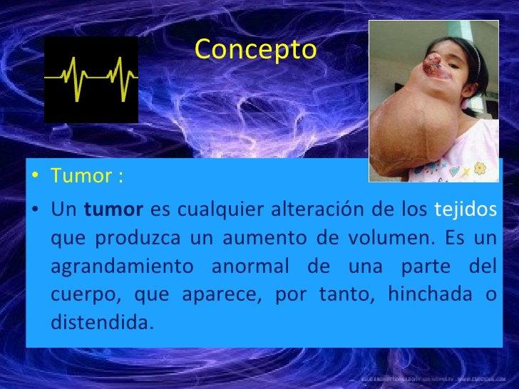 Concepto  <ul><li>Tumor : </li></ul><ul><li>Un  tumor  es cualquier alteración de los  tejidos  que produzca un aumento de...