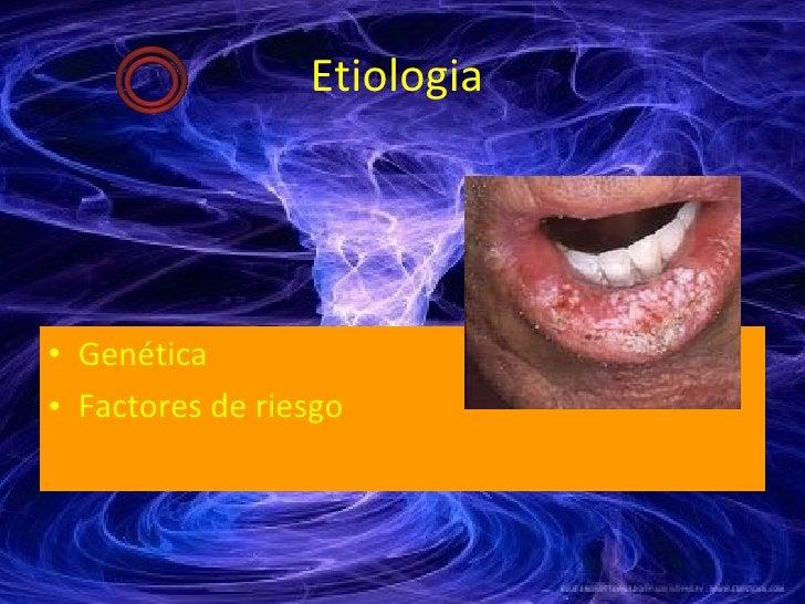 Etiologia  <ul><li>Genética </li></ul><ul><li>Factores de riesgo </li></ul>