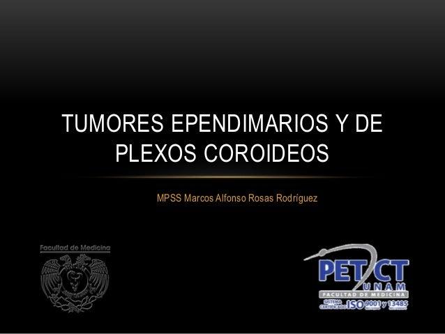 MPSS Marcos Alfonso Rosas Rodríguez TUMORES EPENDIMARIOS Y DE PLEXOS COROIDEOS