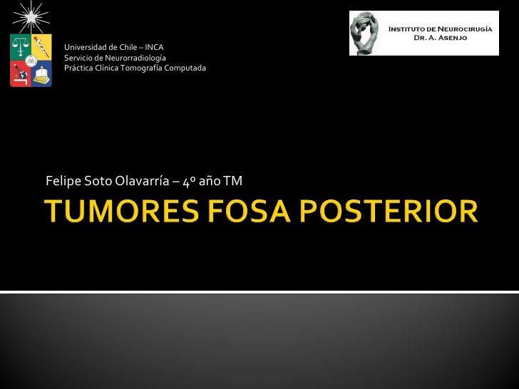 Universidad de Chile – INCA   Servicio de Neurorradiología   Práctica Clínica Tomografía ComputadaFelipe Soto Olavarría – ...