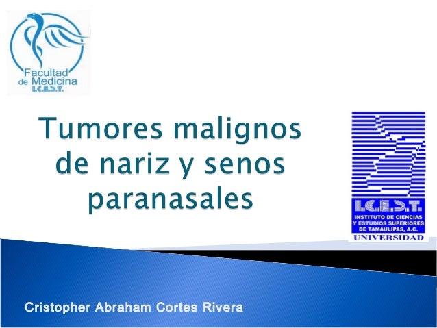 Cristopher Abraham Cortes Rivera