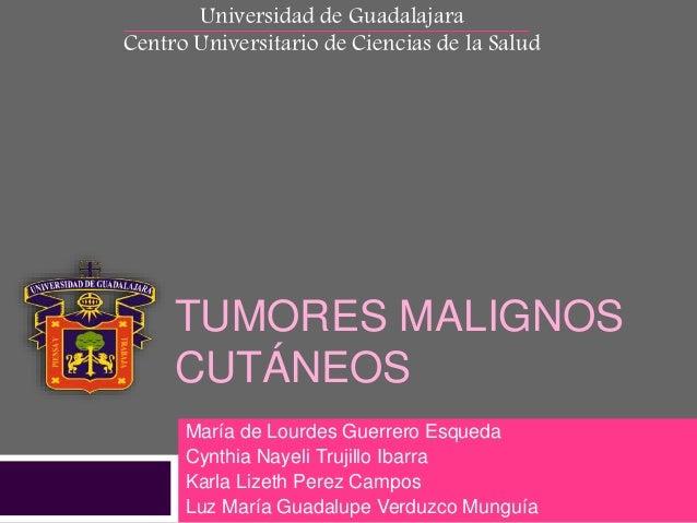 Universidad de Guadalajara  Centro Universitario de Ciencias de la Salud  TUMORES MALIGNOS  CUTÁNEOS  María de Lourdes Gue...