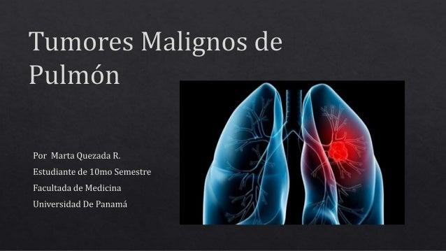 Carcinoma Bronquial Cualquier neoplasia que se origine del epitelio de los bronquios o tejido alveolar