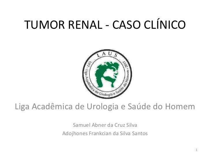 TUMOR RENAL - CASO CLÍNICOLiga Acadêmica de Urologia e Saúde do Homem               Samuel Abner da Cruz Silva           A...