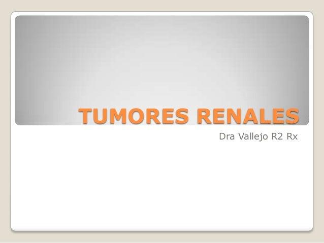 TUMORES RENALES Dra Vallejo R2 Rx