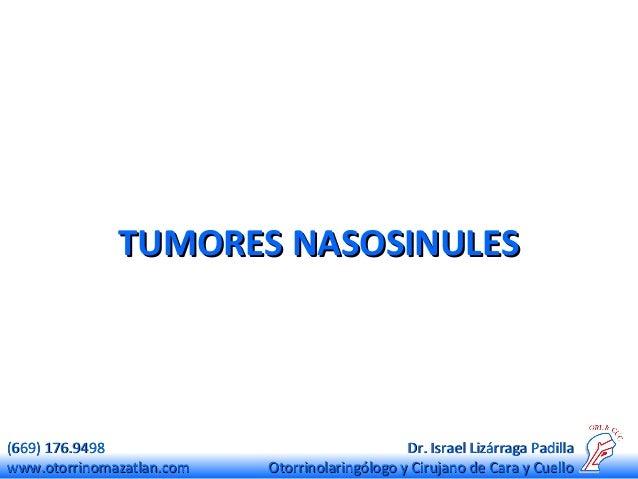 TUMORES NASOSINULES  (669) 176.9498 www.otorrinomazatlan.com  Dr. Israel Lizárraga Padilla Otorrinolaringólogo y Cirujano ...