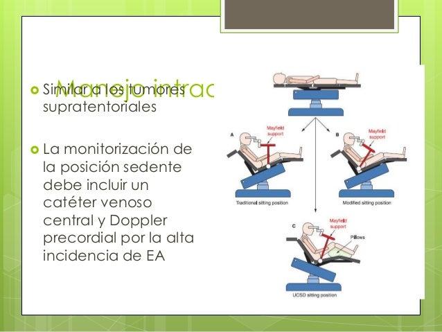 a los tumores Manejo intraoperatorio   Similar  supratentoriales   La  monitorización de la posición sedente debe inclui...
