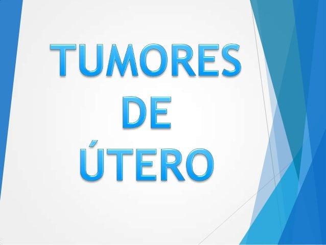   También llamado leiomioma o fibroma    Es la patología benigna más frecuente del útero y la más frecuente de la mujer....