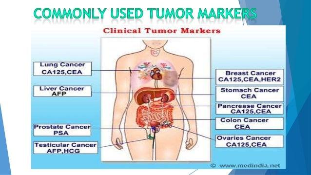 Hepatitis C Afp Tumor Marker