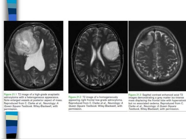 Tumor otak 3.2