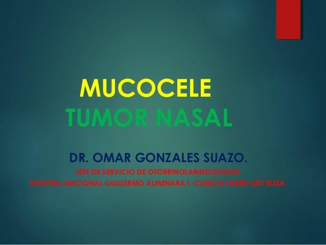 MUCOCELE TUMOR NASAL DR. OMAR GONZALES SUAZO. JEFE DE SERVICIO DE OTORRINOLARINGOLOGIA. HOSPITAL NACIONAL GUILLERMO ALMENA...