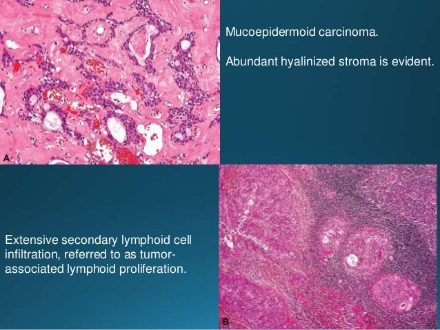 • The majority of tumors with a predominant population of clear cells have been diagnosed as epithelial-myoepithelial carc...