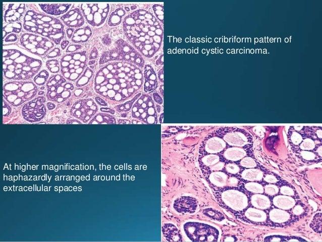 Undifferentiated carcinoma • Rare tumors composed of primitive/anaplastic cells which exhibit no obvious line of different...