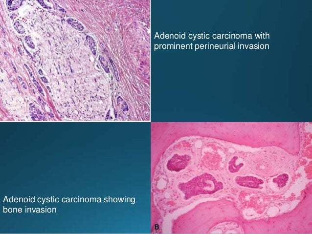 Large cell carcinoma. Sheet-like growth pattern of large pleomorphic cells with abundant eosinophilic cytoplasm and promin...