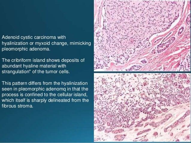 Adenocarcinoma NOS: Low grade tumor. Prominent well-formed glandular formations. Intermediate-grade tumor. Fused glandular...