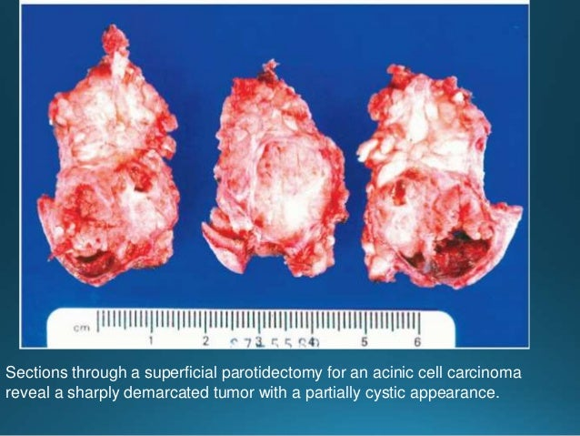 MALT lymphoma.Immunohistochemistry. (A) The lymphoid tumor cells at both inside and outside of the lymphoepithelial lesion...