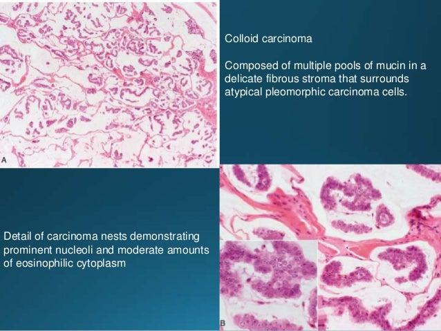 Tumors of salivary gland