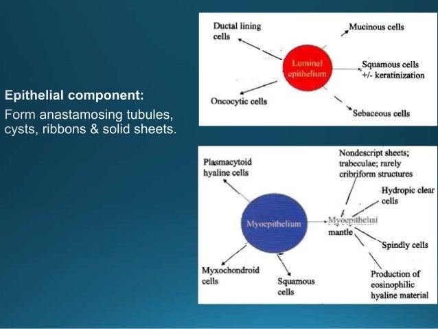 Recurrent pleomorphic adenoma Typical multinodular growth pattern.