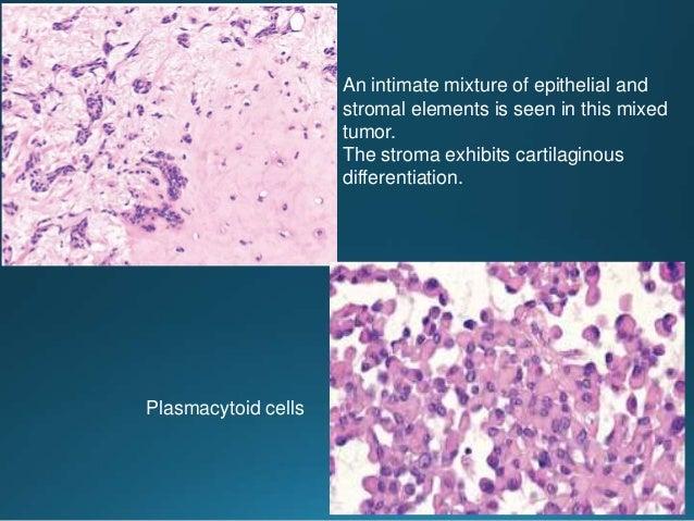 Noninvasive carcinoma ex pleomorphic adenoma showing more extensive dysplastic change Noninvasive carcinoma ex pleomorphic...