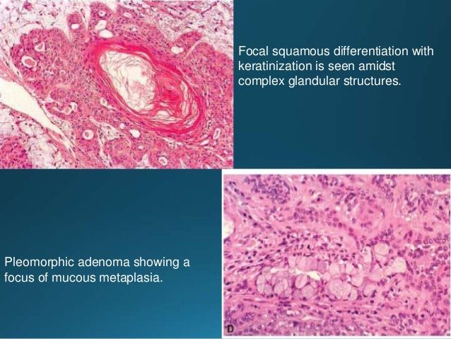 Carcinosarcoma showing mixture of adenocarcinomatous and osteosarcomatous differentiation