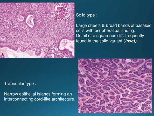 Canalicular adenoma is made up of double rows of interconnecting & branching cords of tumor composed of bland, basaloid, c...