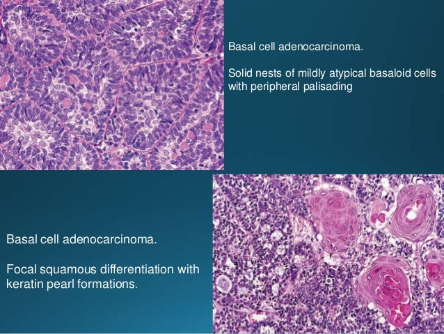 Well-differentiated sebaceous carcinoma consisting of non-specific glandular cells and cells showing conspicuous sebaceous...