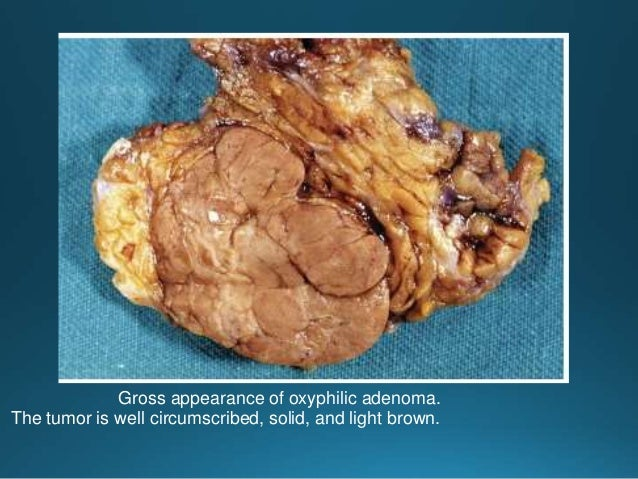 Cut surface of the intermediate-grade tumor shows gray white, solid mass accompanied by multiple small cystic structures a...