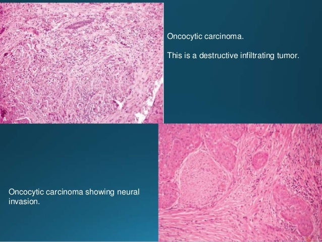 Tumor is composed primarily of markedly pleomorphic epidermoid cells and a small proportion of mucous cells. Periodic acid...