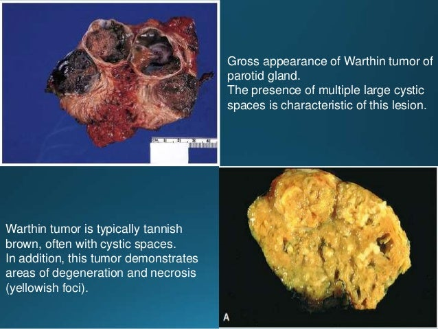 Adenoid cystic carcinoma. Tubular variant (20-30%) showing morphologically similar luminal and abluminal cells. Adenoid cy...
