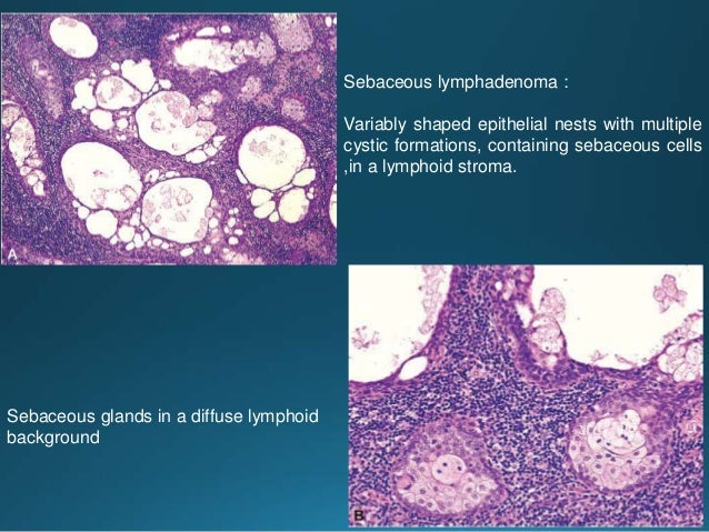 Sections through a superficial parotidectomy for an acinic cell carcinoma reveal a sharply demarcated tumor with a partial...