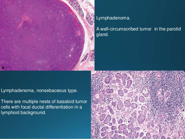 Acinic cell carcinoma. The cells have an abundant cytoplasm filled with basophilic zymogen granules Acinic cell carcinoma....