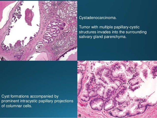 Tumor invades into the minor salivary gland parenchyma. A malignant infiltrative tumor characterized by diverse architectu...