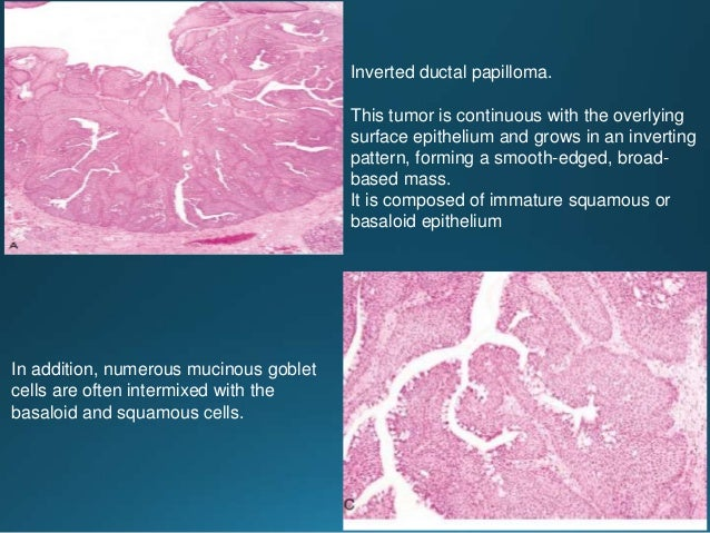 Tubular structures are predominantly lined by a single layer of small cuboidal cells. Multiple pseudocystic spaces with pa...