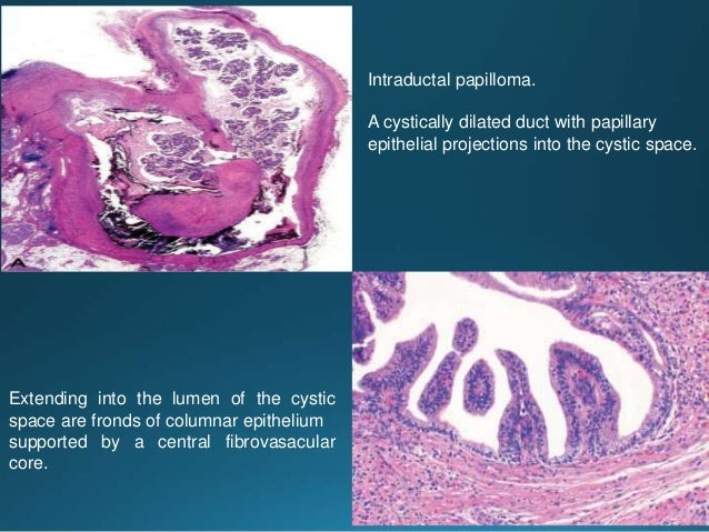 Perineural invasion with concentric targetoid appearance. Fascicular growth pattern
