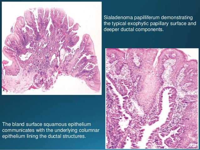The myoepithelial component is represented by the cells with clear cytoplasm The tumor characteristically invades in broad...