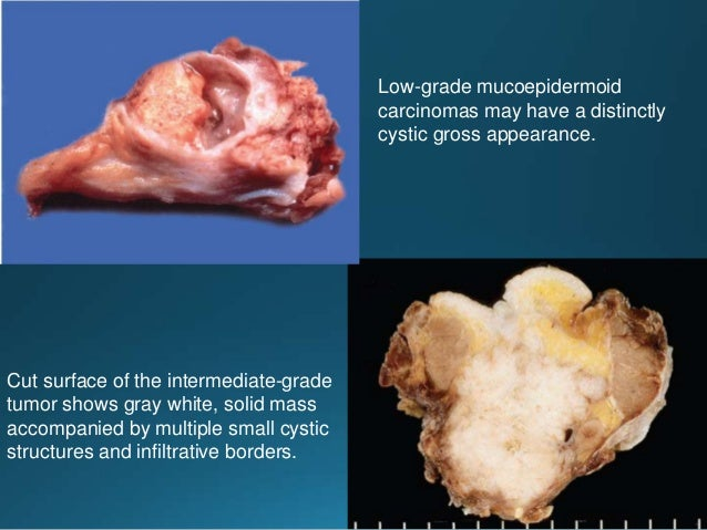Cut surface of the tumor shows gray-white, solid mass with foci of necrosis